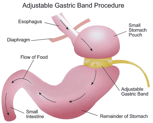 What is Gastric Band? - VIRTUAL GASTRIC BAND – ORANGE COUNTY